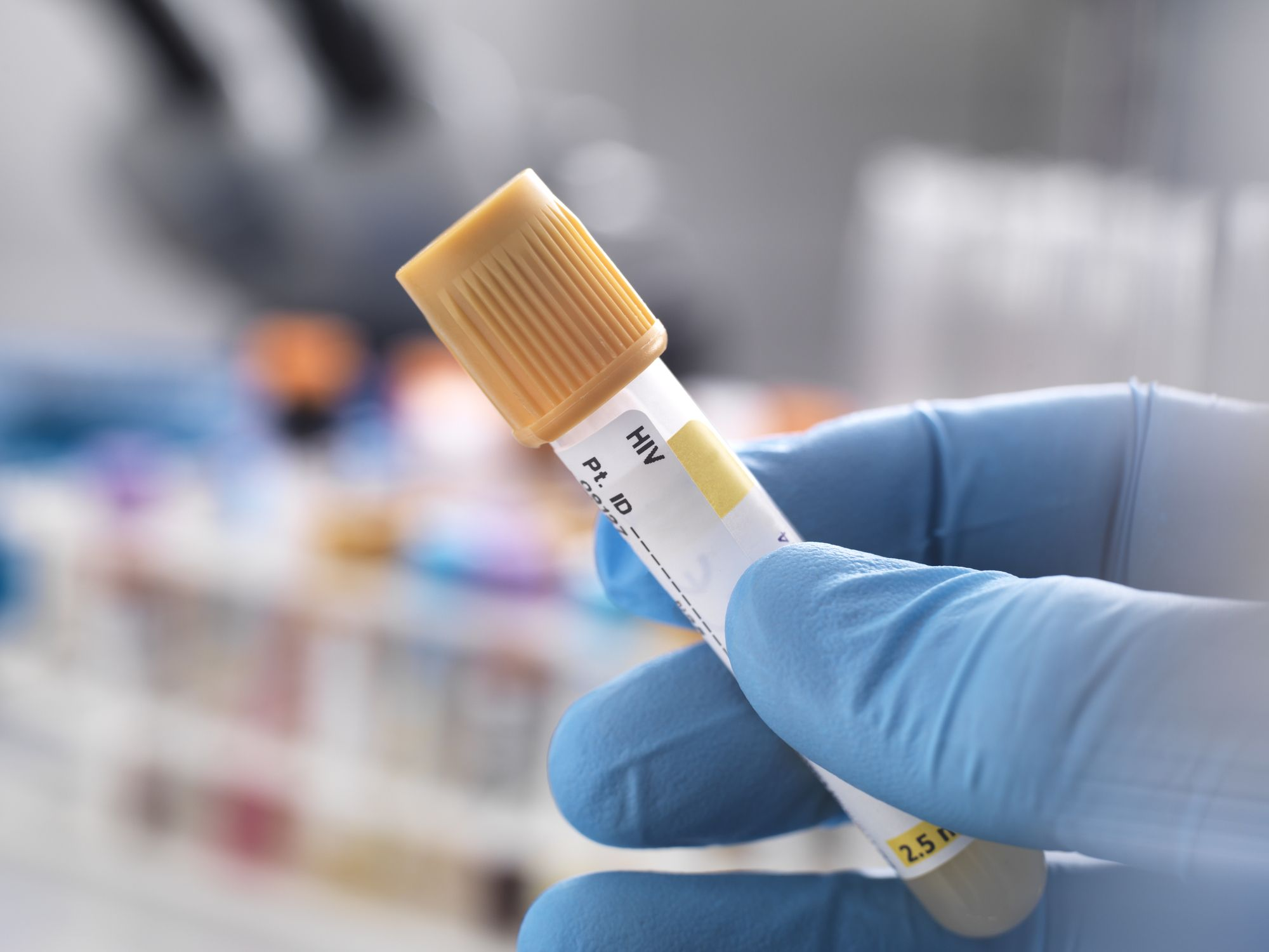Scientists report a 2nd person has been cured of HIV